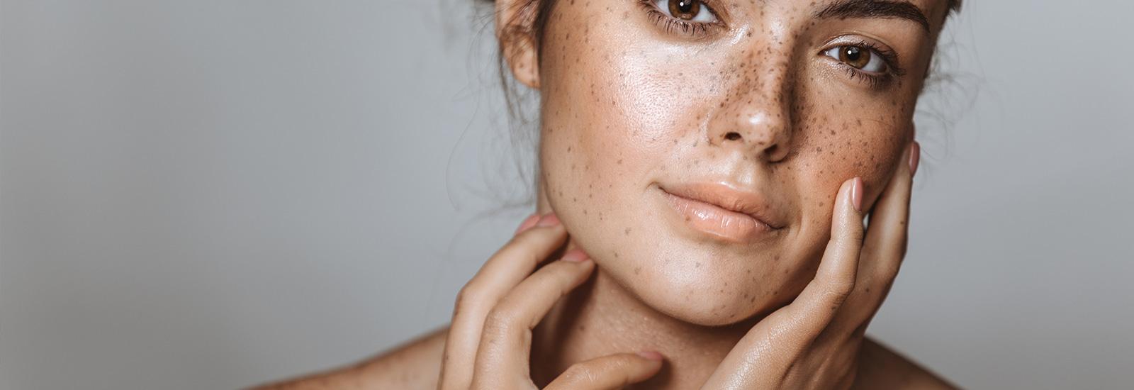 Gezonde-huid-1